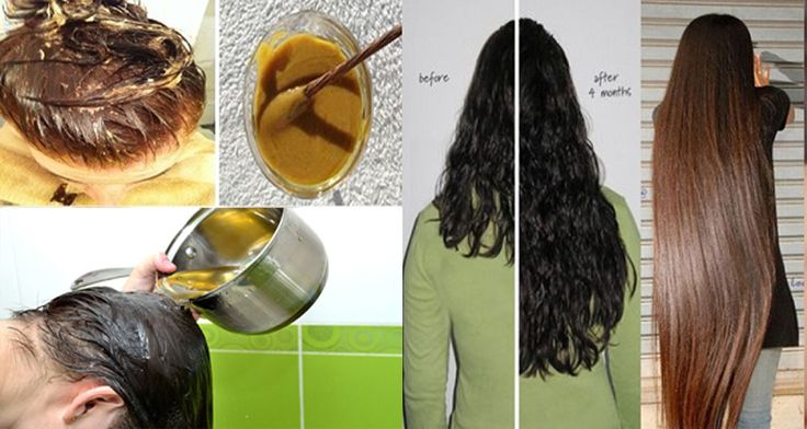 Get your personal hair grow like crazy with this easy do it get your personal hair grow like crazy with this easy do it yourself recip solutioingenieria Gallery