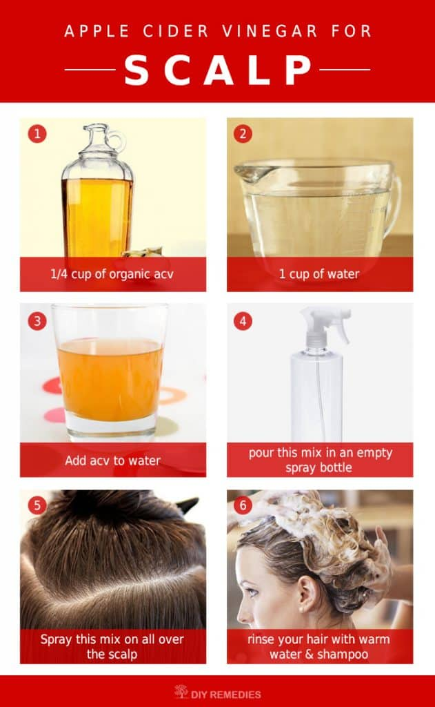 How To Use Apple Cider Vinegar For Scalp