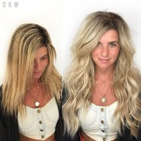 Natural Beaded Rows ™ Before & After
