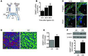 JCI  Flowdependent epigeic DNA methylation regulates endothelial gene expression and