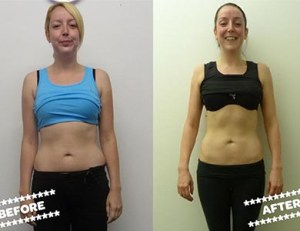 Stacey Raeburn before & after