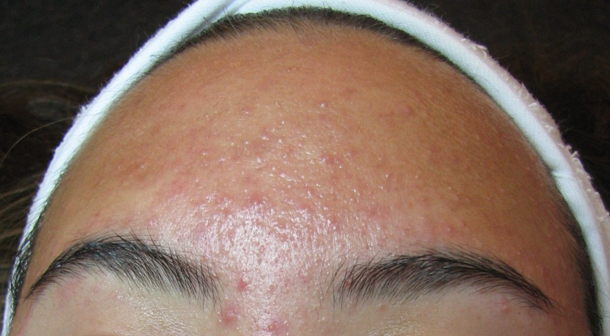 Forehead Acne: Its Causes and Remedies