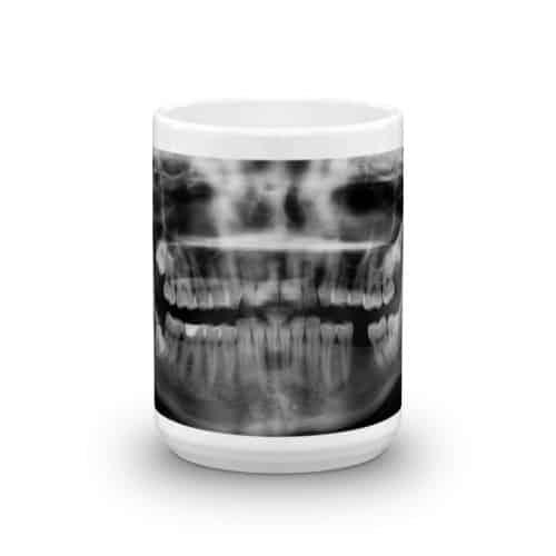X-Ray Mug-front (15 oz)