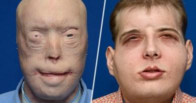 Medycyna przyszłości. Strażak po przeszczepie twarzy wrócił do życia