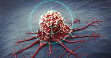 leczeniu nowotworów