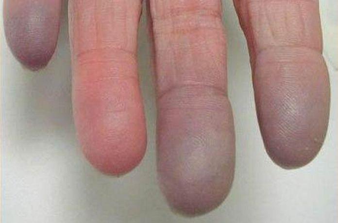 El sindrome de Raynaud no es el único síntoma de esclerodermia (Foto: Salud y Medicinas)