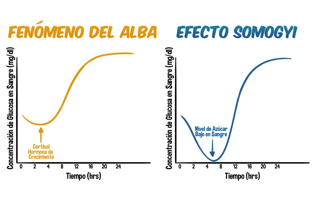 somogyi effect vs dawn phenomenon pdf