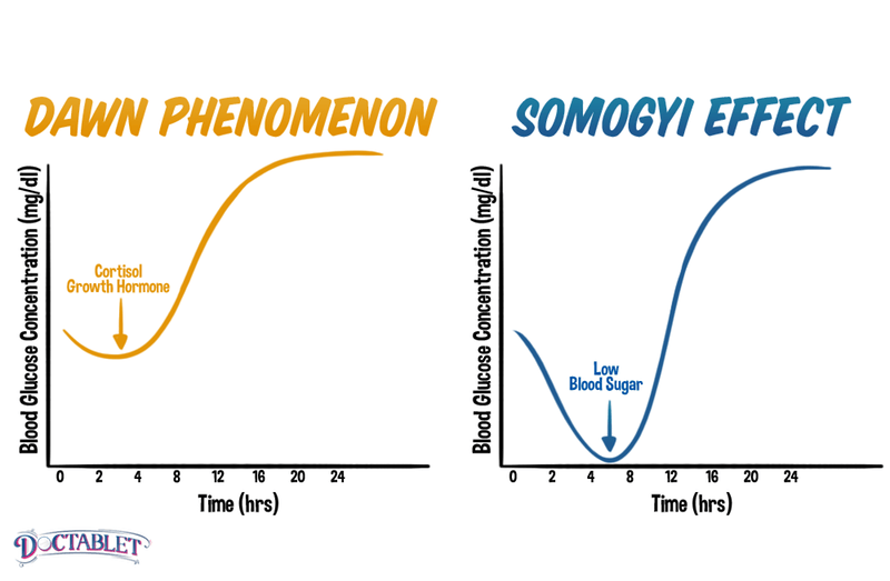 Dawn phenomenon vs Somogyi Effect