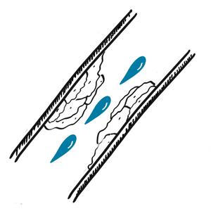 Stenosis artery