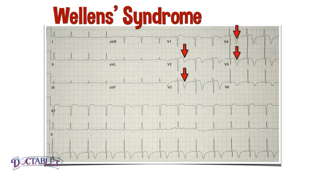 Wellens' Syndrome, What is the Wellens' Sign - Doctablet®