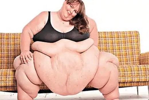 Susanne eman, la femme la plus grosse au monde