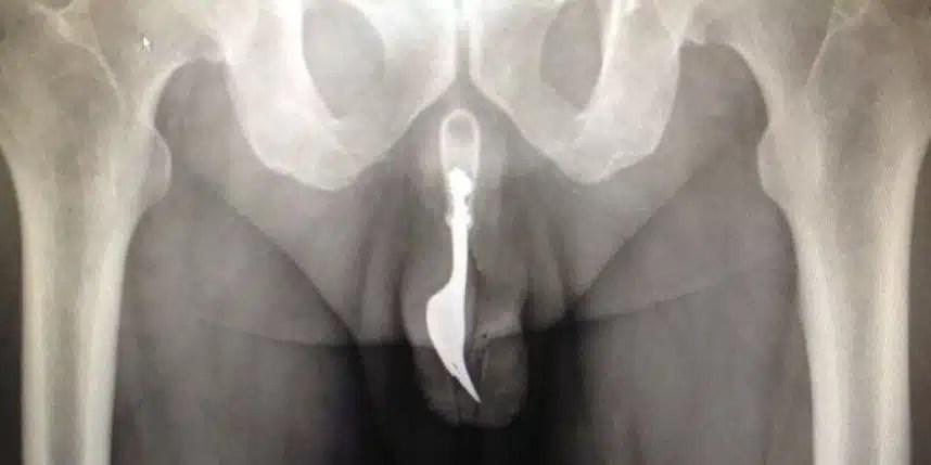 insolite accident Fourchette penis