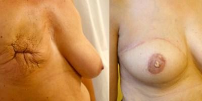 reconstruction-mammaire-par-prothese-docteur-luini-chirurgie-esthetique-nice-4
