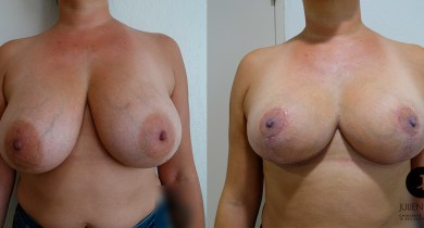 reduction-mammaire-nice-docteur-luini