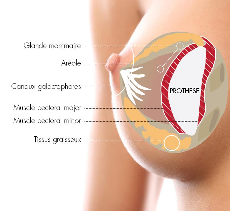 chirurgie esthétique des seins augmentation mammaire par prothèses mammaires
