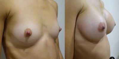 augmentation-mammaire-nice-4