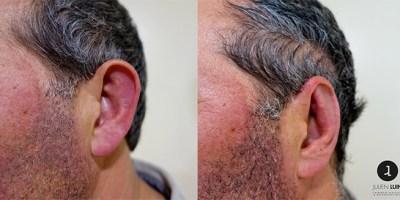 Docteur luini – avant après devant oreille