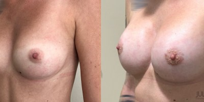 Augmentation-mammaire