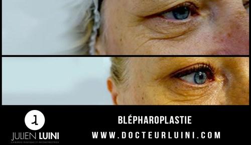 Blépharoplastie