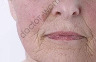 Типы кожи: оценка типа и состояния кожи