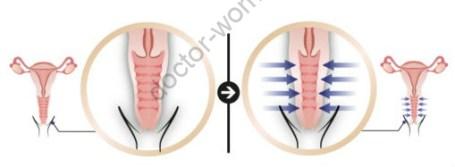 Лазерное лечение при синдроме менопаузы (GSM). Как забыть о сухости, жжение, зуде и других неприятных явлениях… там