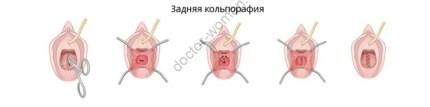 Передняя, задняя и средняя кольпорафия - операции, применяемые при опущении влагалища и матки