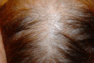 Alopecia Androgenica mujer