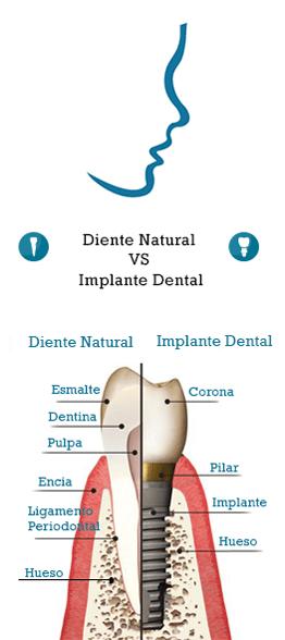 diente vs implante