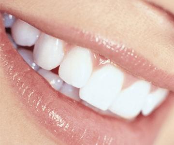 Dientes implantes dentales