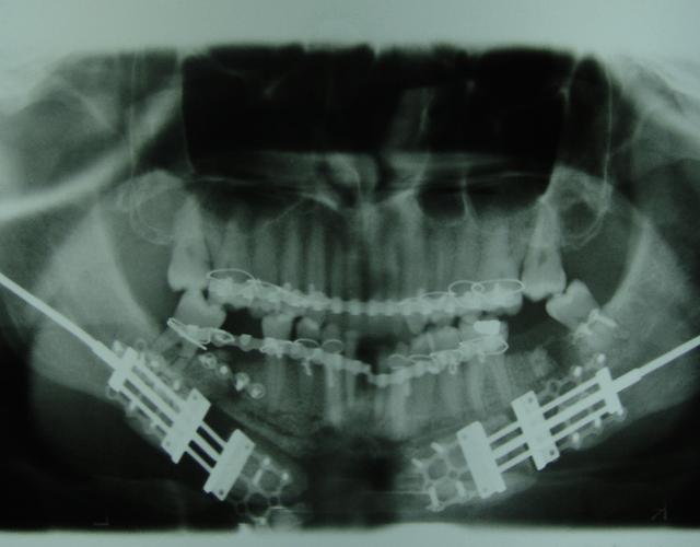 La distracción osteogénica