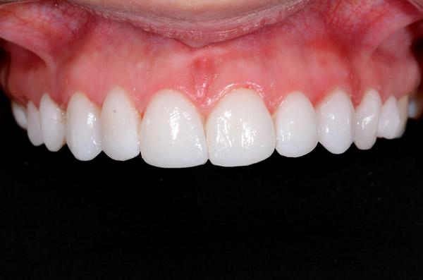 caso clinico diseño de sonrisa