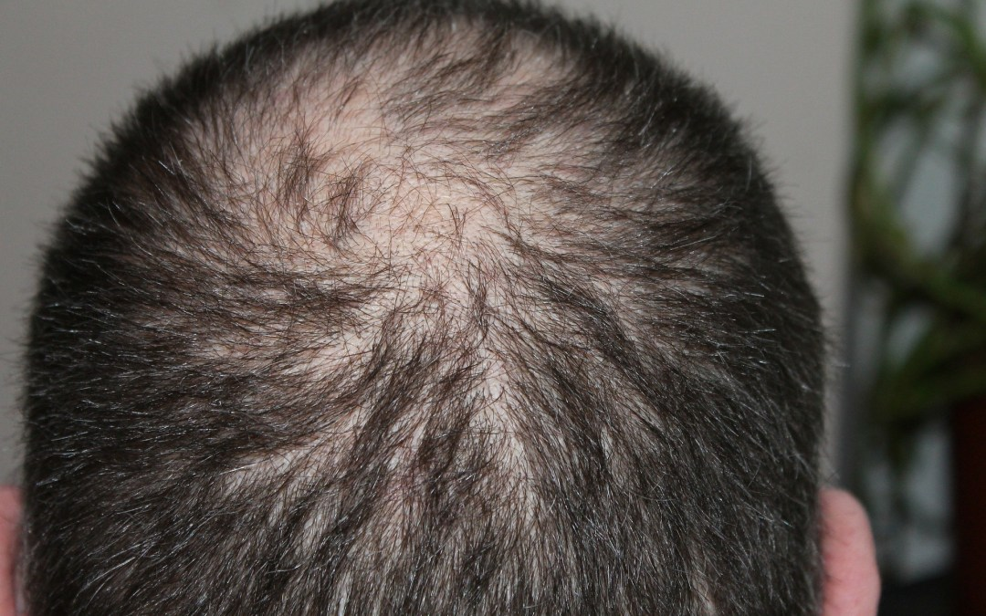 Losing Hair and Don't Know Why? It's Time to Fix Your Gut
