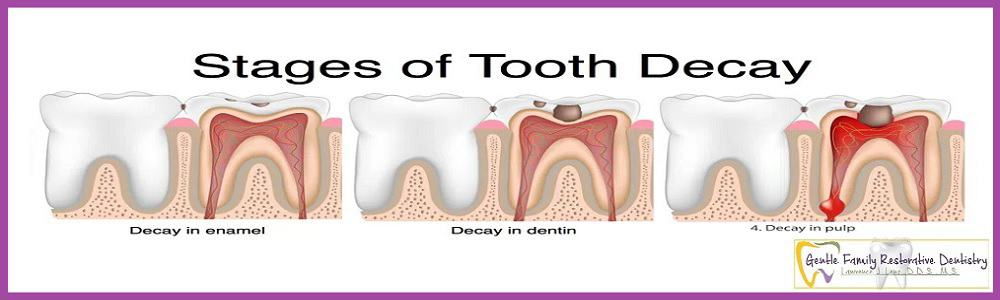 Prevention of Tooth Decay & Gum Diseases in Easy Steps