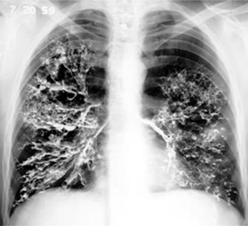 Image result for bronchography bronchiectasis