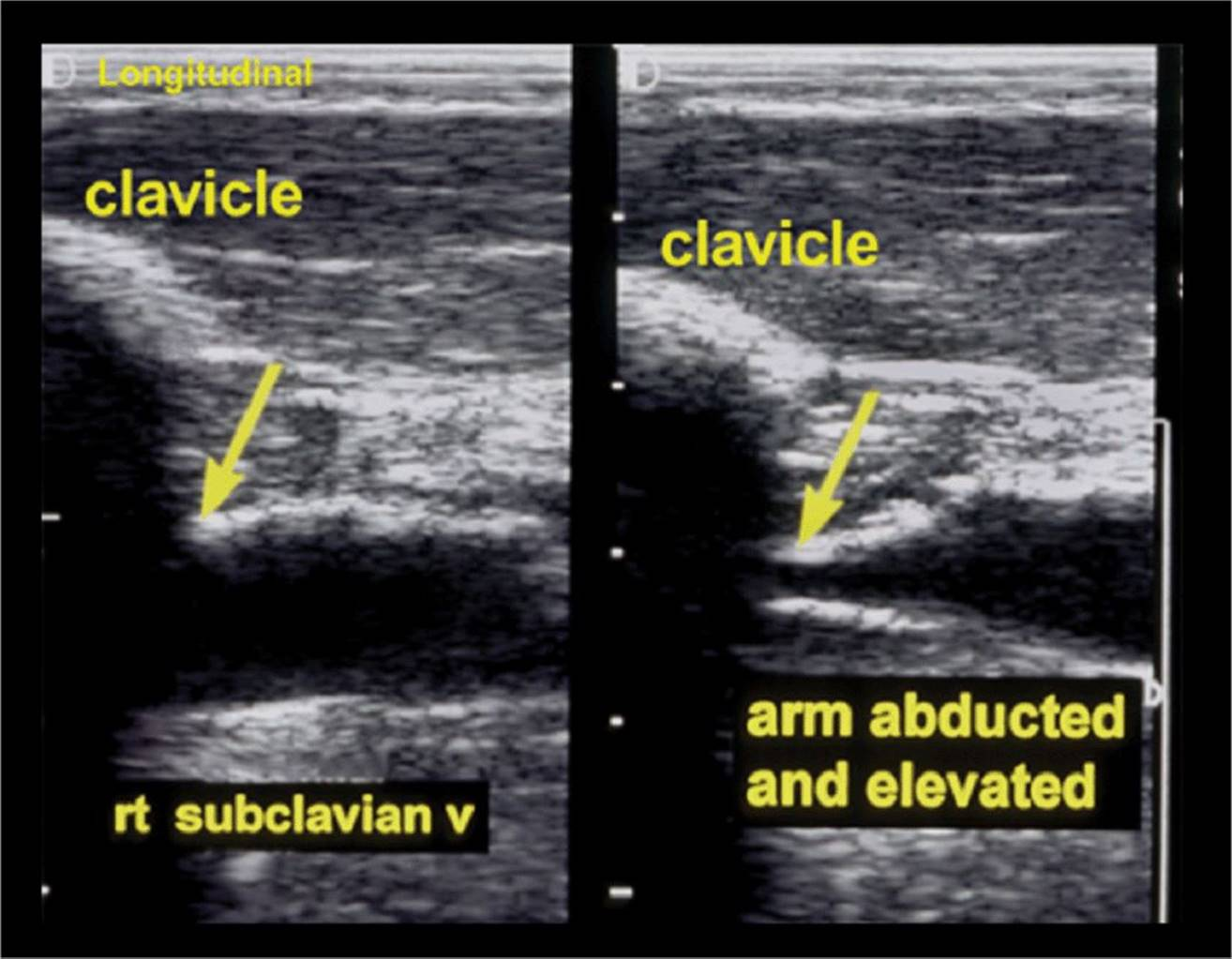 Sonography Of The Peripheral Veins
