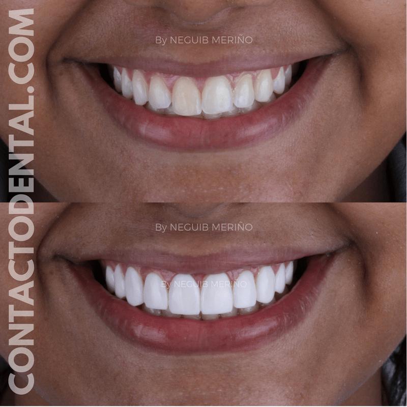 Diseño de Sonrisa 3D en paciente con Necrosis Pulpar