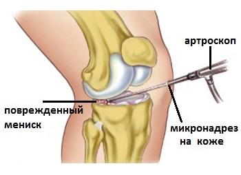 articulațiile postinor doare ce medicamente să luați cu artroza articulației gleznei