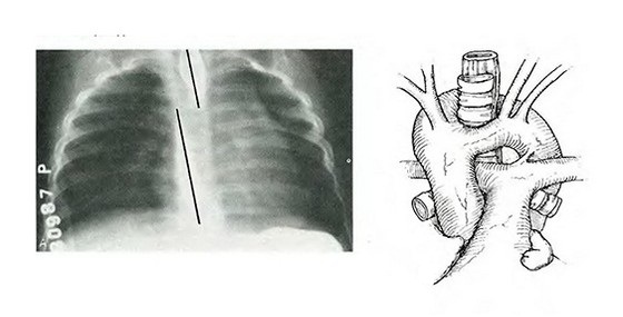 x-ray varicoză
