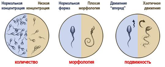 Prostatitis herbalizmus Mennyire veszélyes prosztatitis műveletek