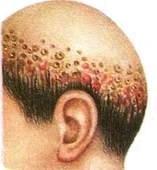 Фавус (парша) - кожная грибковая болезнь. Парша — причины и признаки парши