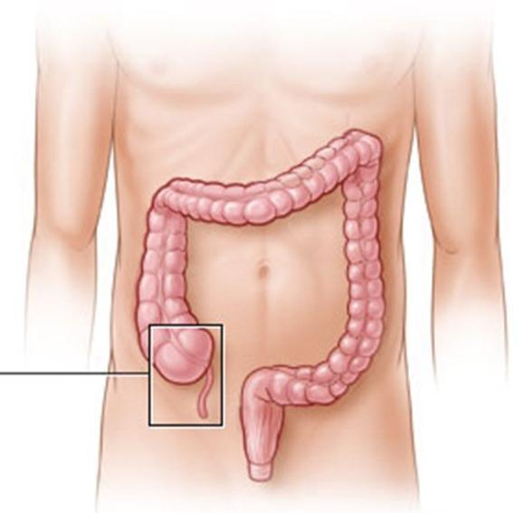 Krónikus prosztatagyulladás, fájdalom ürítése, alsó has