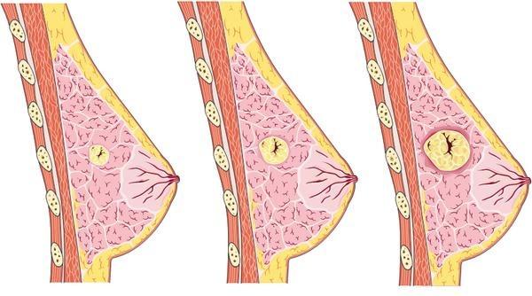 Diät für fibrocystic Mastopathie