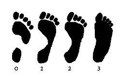 Означают ли боли в ноге стопе что у Вас плоскостопие