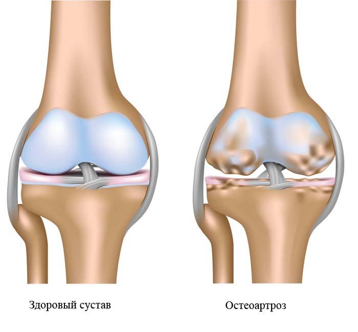 kenőzselék a lábak ízületeinek fájdalmához)