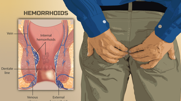 What are hemorrhoids (Bawaseer)?
