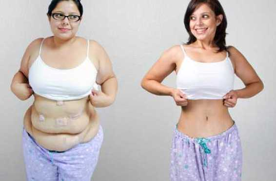 What To Expect After Weight Loss Surgery