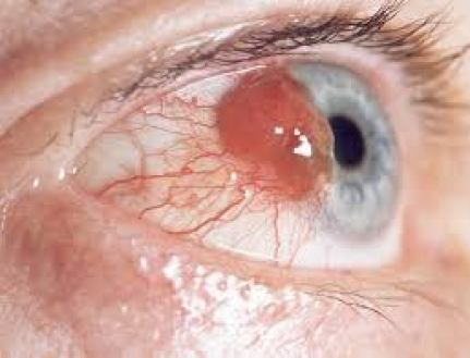causes of eye cancer