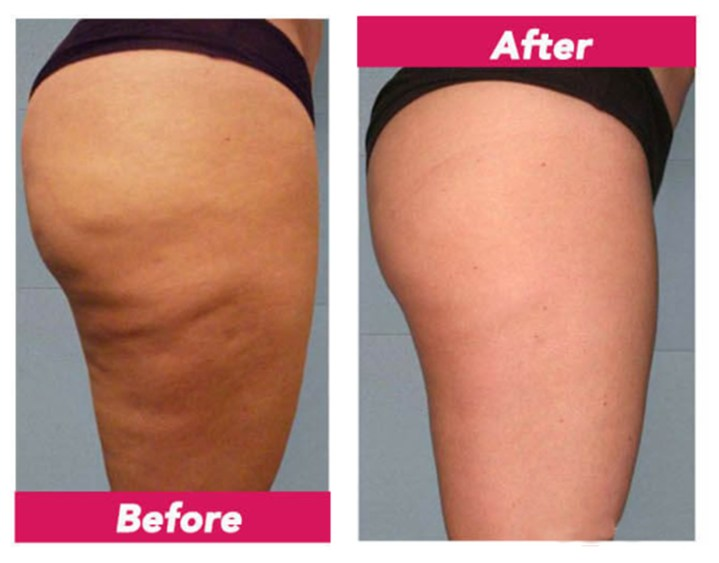 Revitol Cellulite Solution review