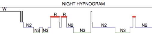 """""""Normal"""" sleep"""