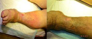 ulcera curada11